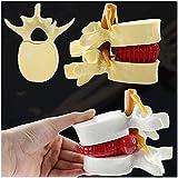 FHUILI 1.5X Ingrandimento Lombare Modello - Umano Spina Dorsale Modello Lombare Umana Vertebre degenerativa Lombare Medico Modello di insegnamento per Lo Studio l'insegnamento di visualizzazione,A